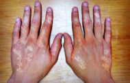 Llama IMSS a cuidarse de la esclerodermia